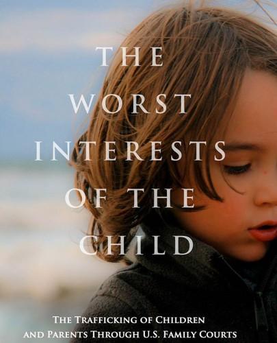 Worst-Interest-1