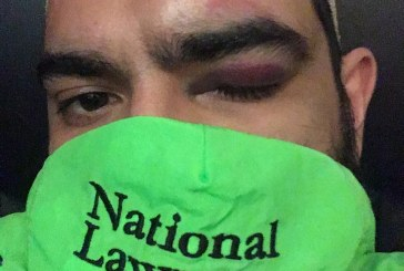 Federal Complaint Filed over 'Wartime'-Like Injuries during Protests