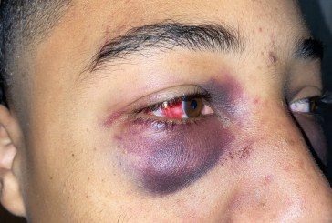 Teen Beaten By Stockton Police Looks To File Suit
